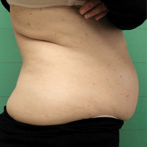 FAT REDUCTION before.jpg