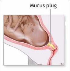 mucusplug.jpg