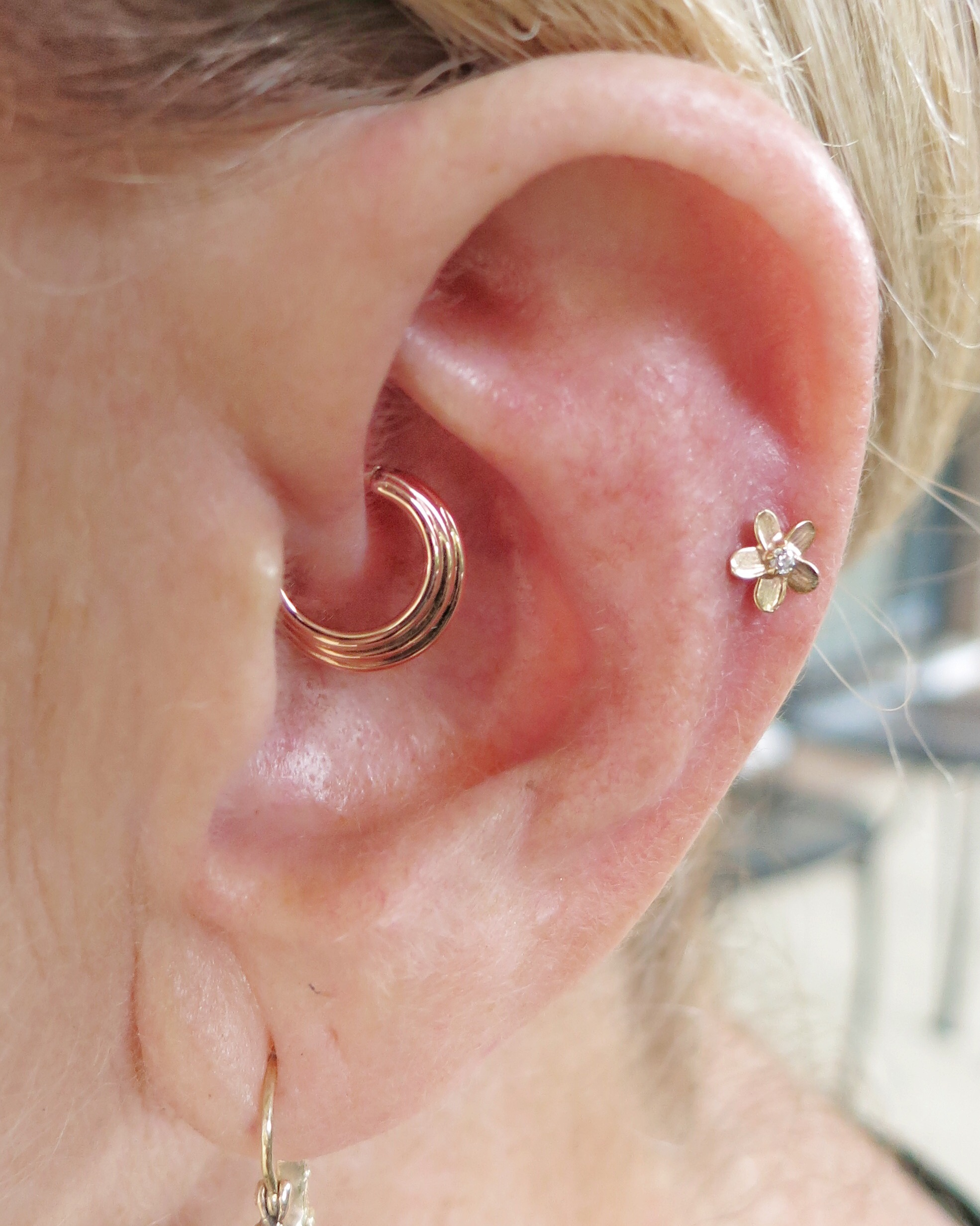 Daith and Helix