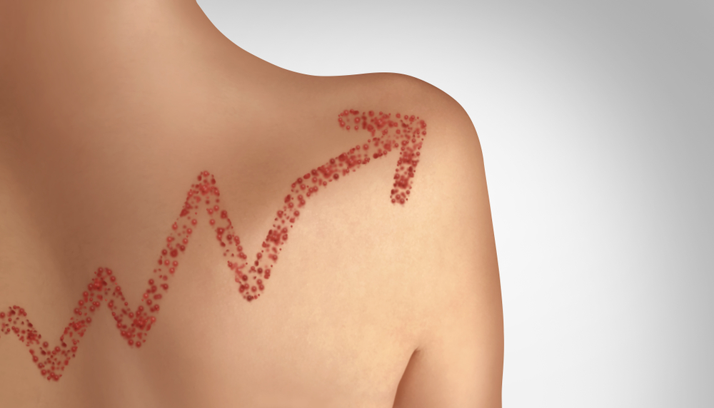 Measles outbreaks have been on the rise. Lightspring/shutterstock