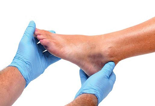 ankle injury diagnosis and treatment in broward