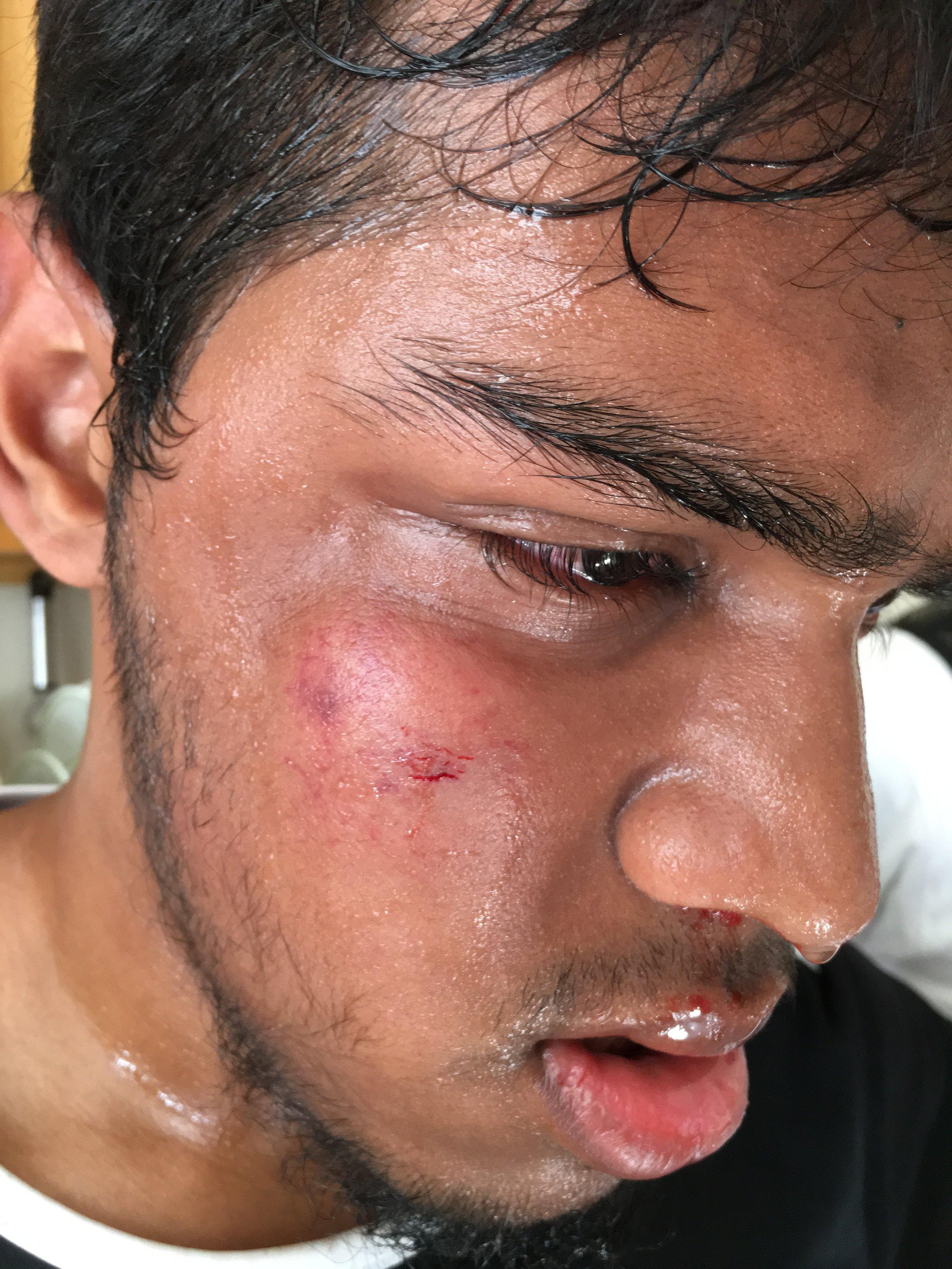 Abrar injury2.JPG