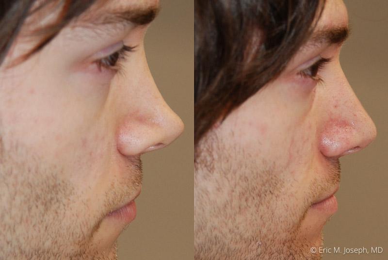 NonSurgicalRhinoplasty-0026.jpg