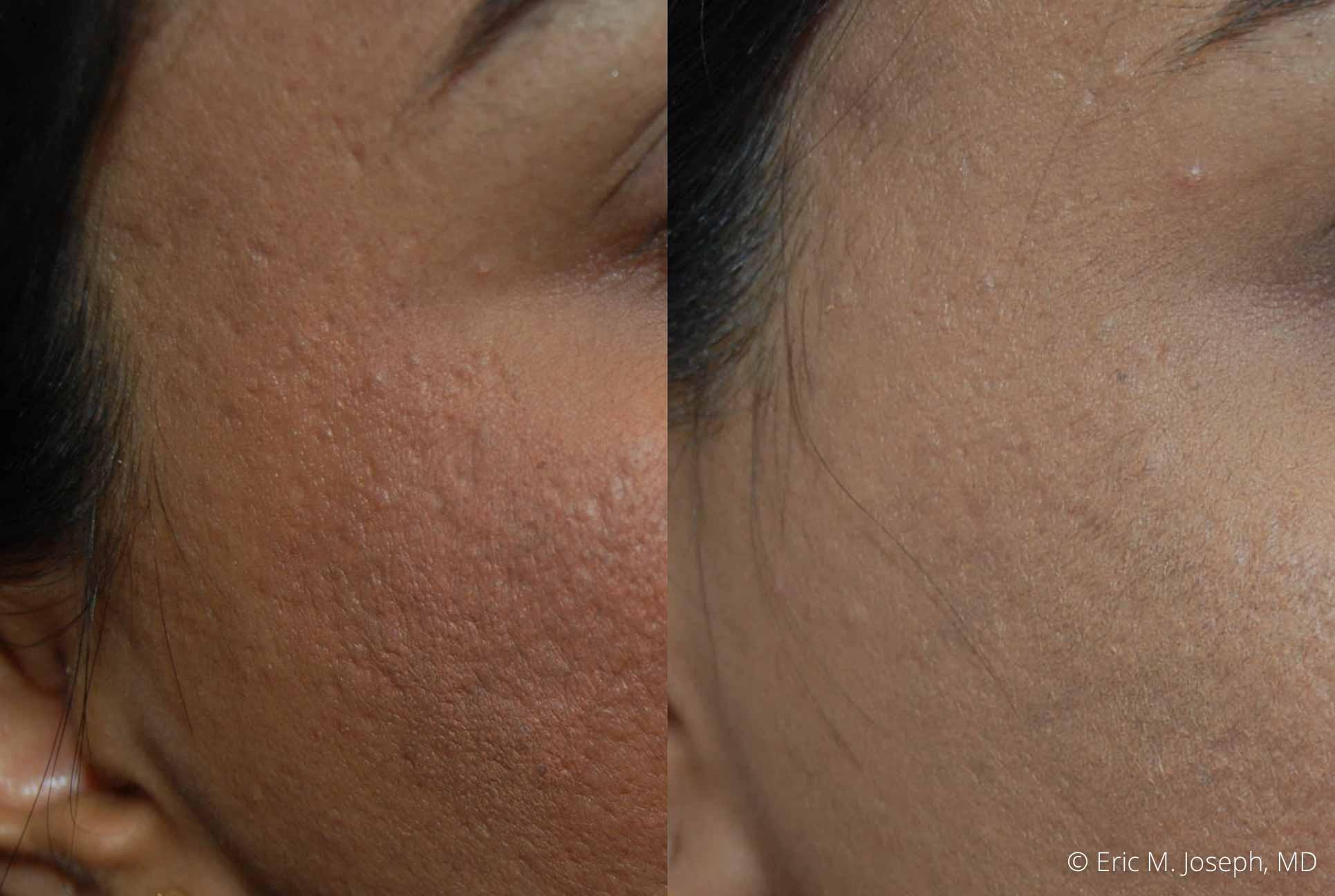 acne-scar-correction-nj-permanent-0024.jpg