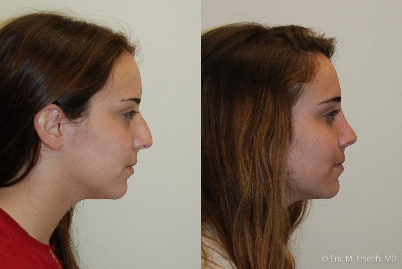 Rhinoplasty-0041.jpg