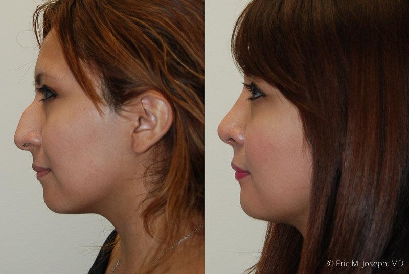 Rhinoplasty-0055.jpg