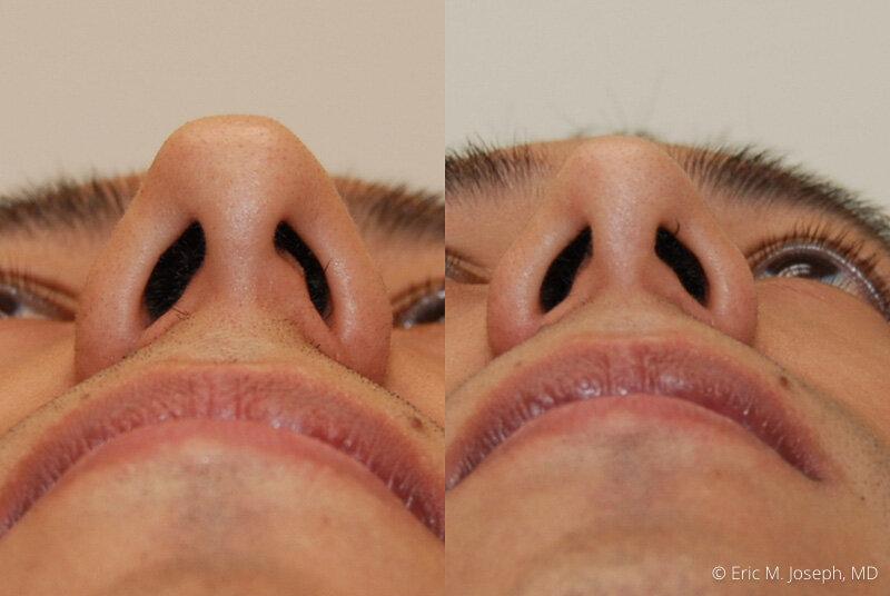 Rhinoplasty-0102.jpg