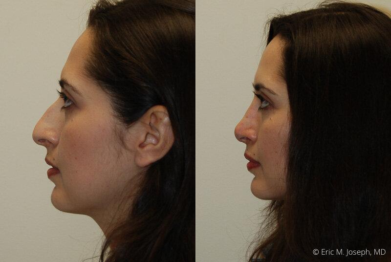 Rhinoplasty-0156.jpg