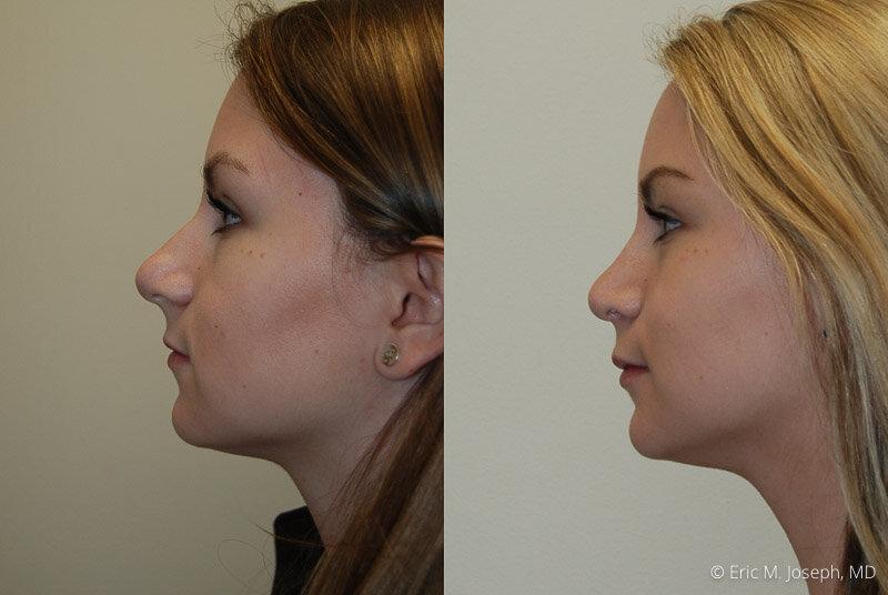 Rhinoplasty-0181.jpg