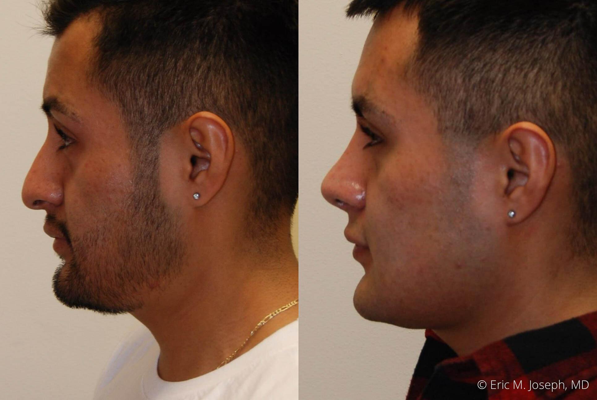rhinoplasty-new-jersey-essex-bergan-nj-0418.jpg