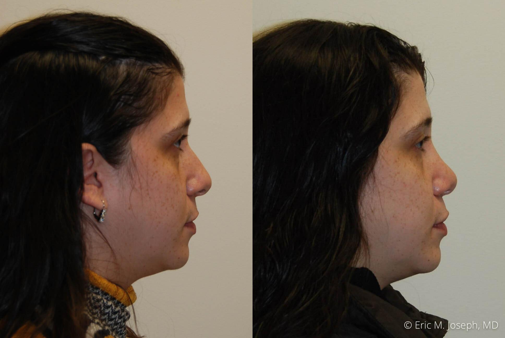 rhinoplasty-new-jersey-essex-bergan-nj-0426.jpg