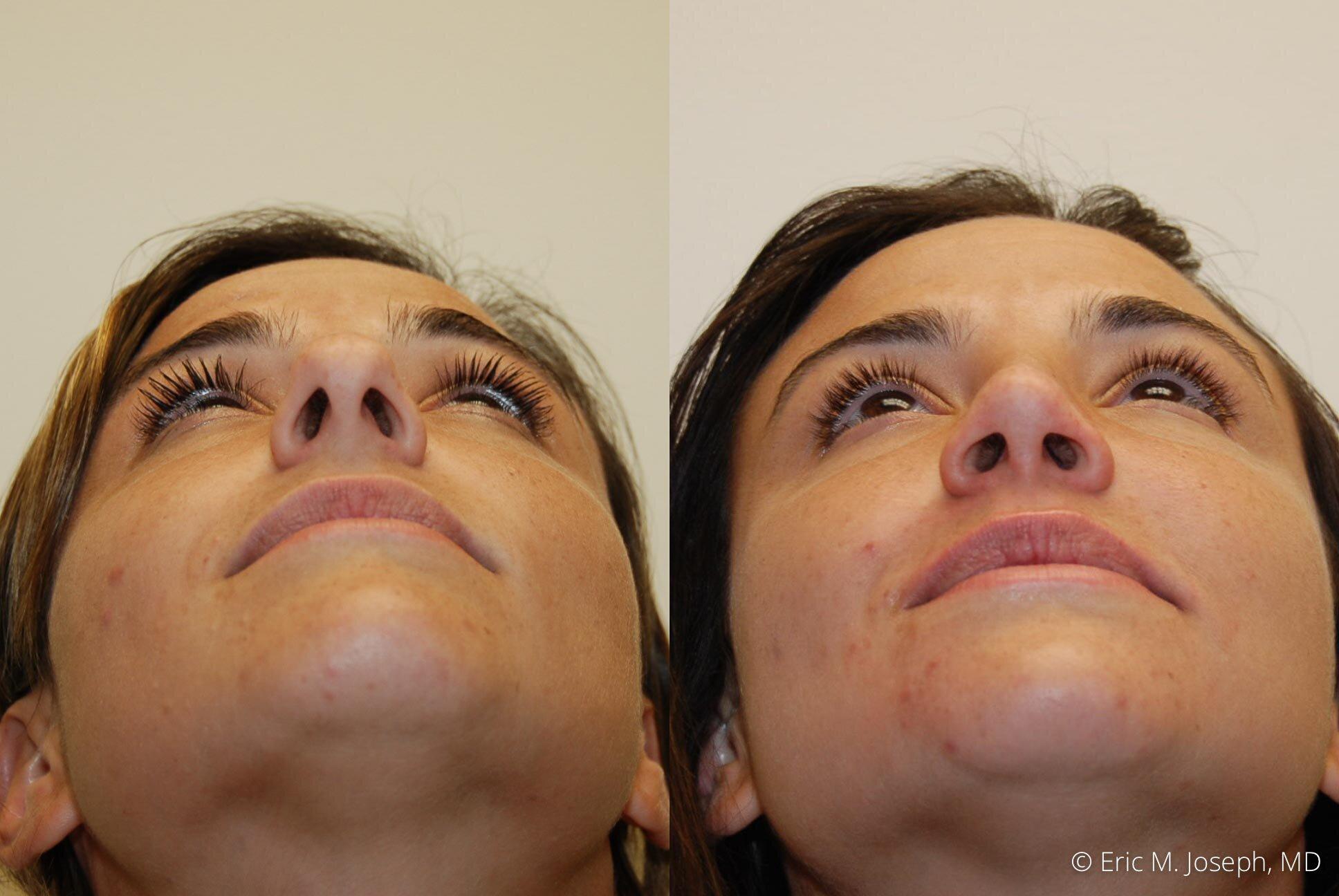 rhinoplasty-new-jersey-essex-bergan-nj-0437.jpg