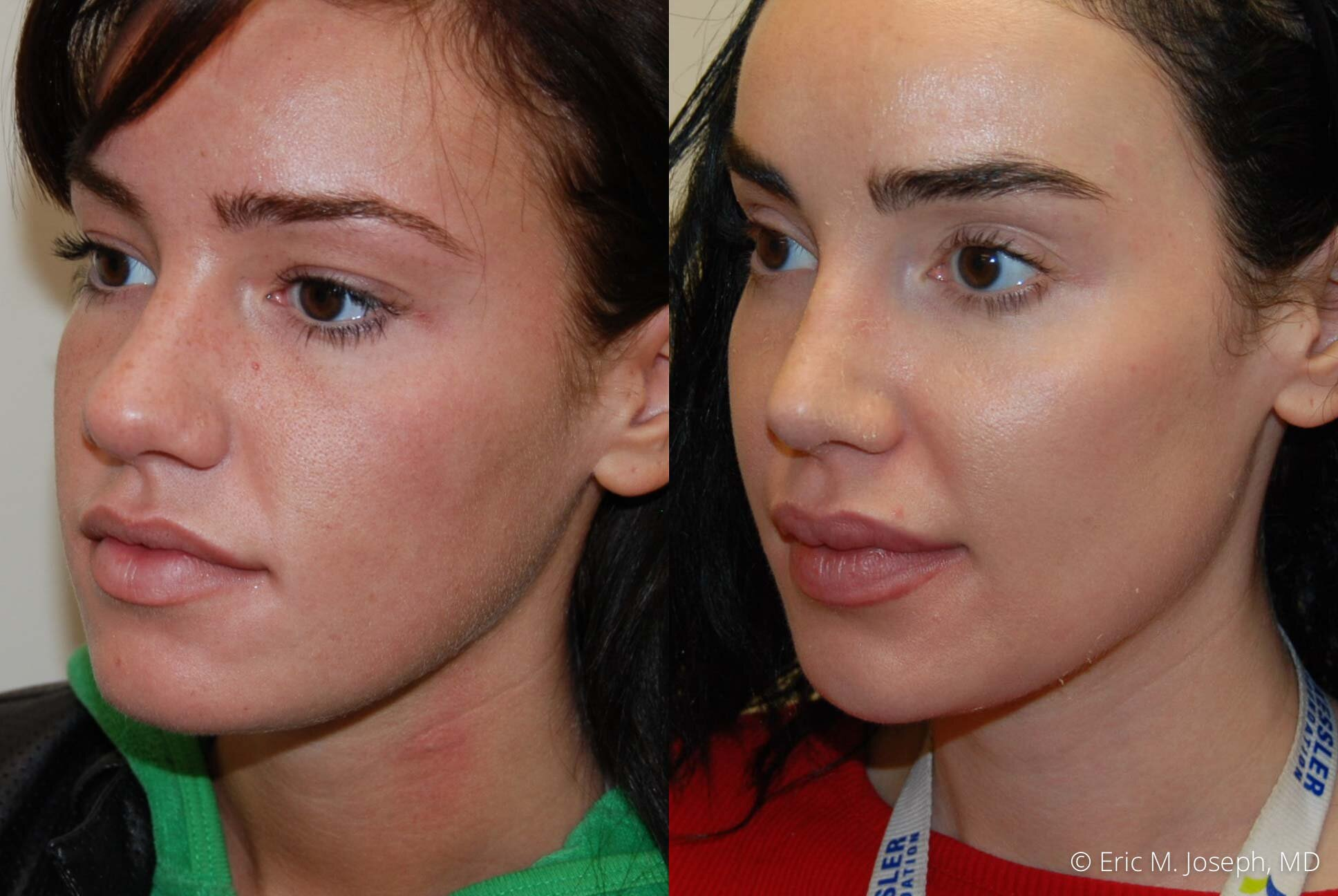 nose-job-rhinoplasty-nj-nyc-best-0456.jpg