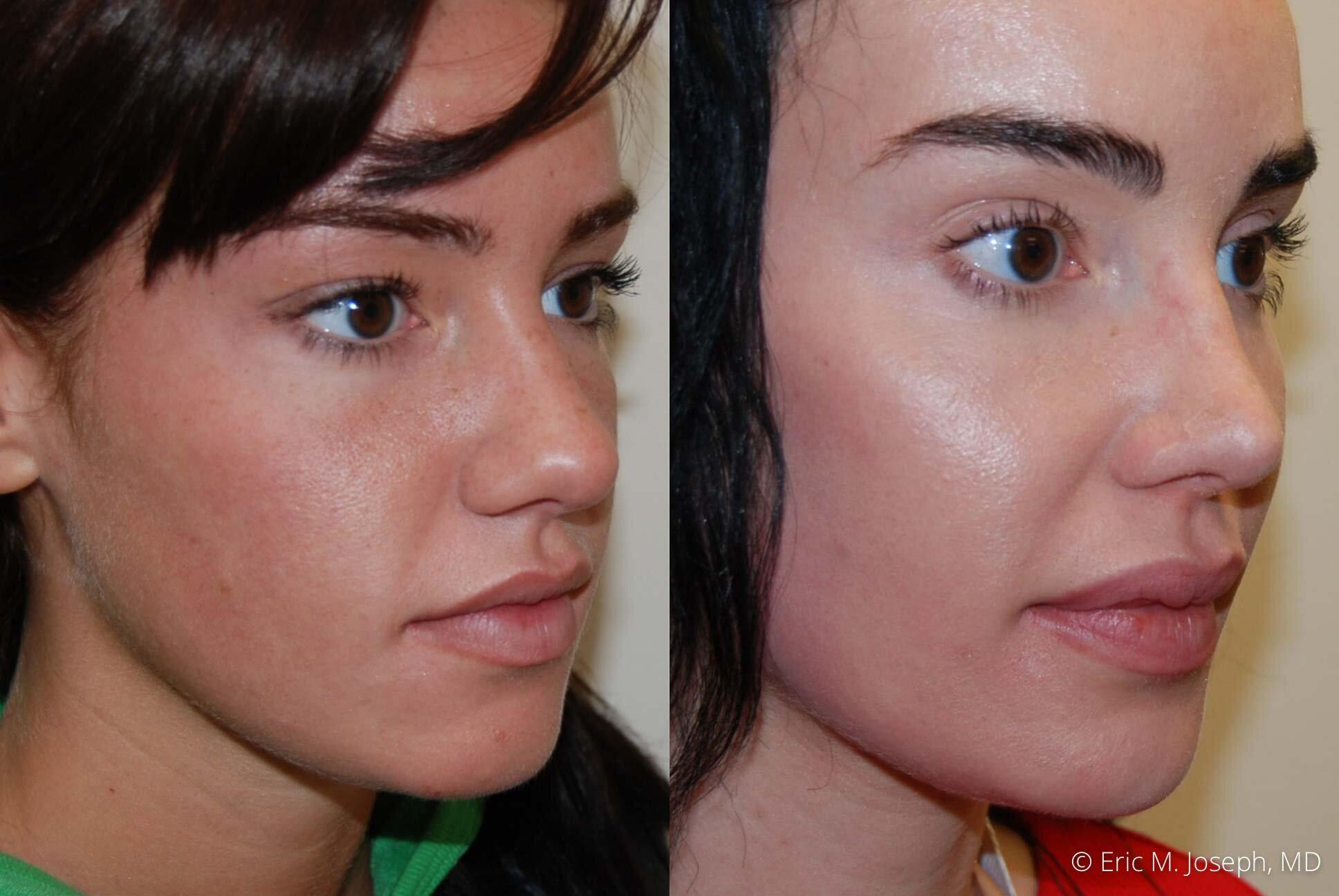 nose-job-rhinoplasty-nj-nyc-0457.jpg