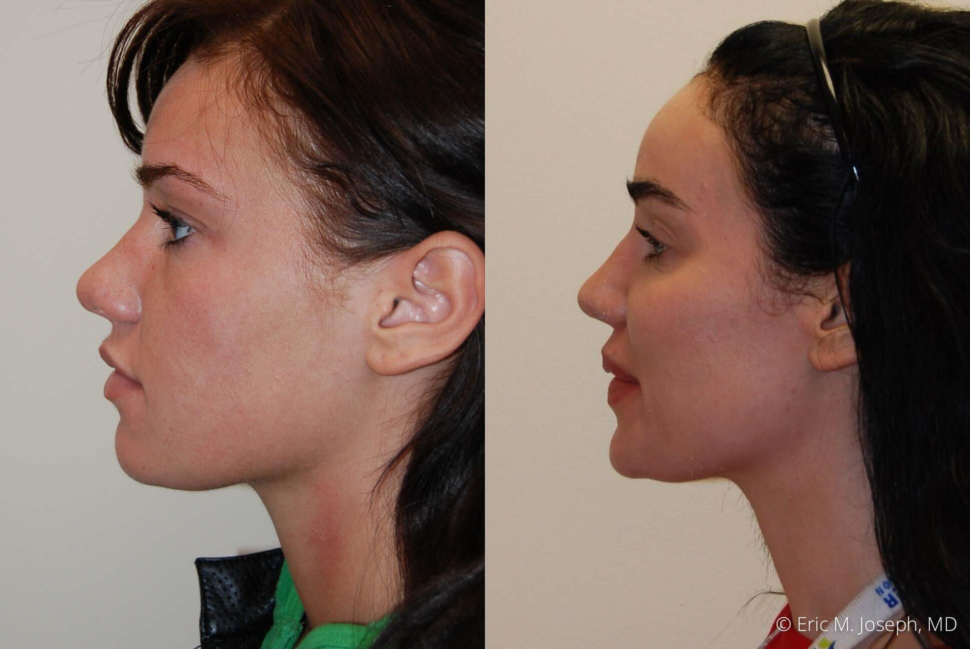 nose-job-rhinoplasty-nj-nyc-0458.jpg