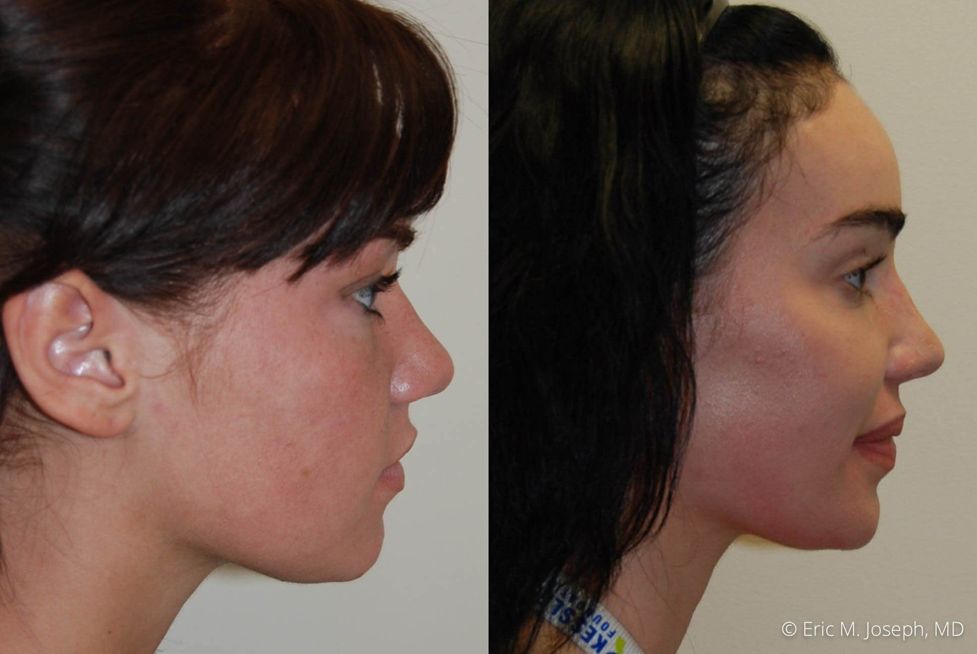 nose-job-rhinoplasty-nj-nyc-0459.jpg