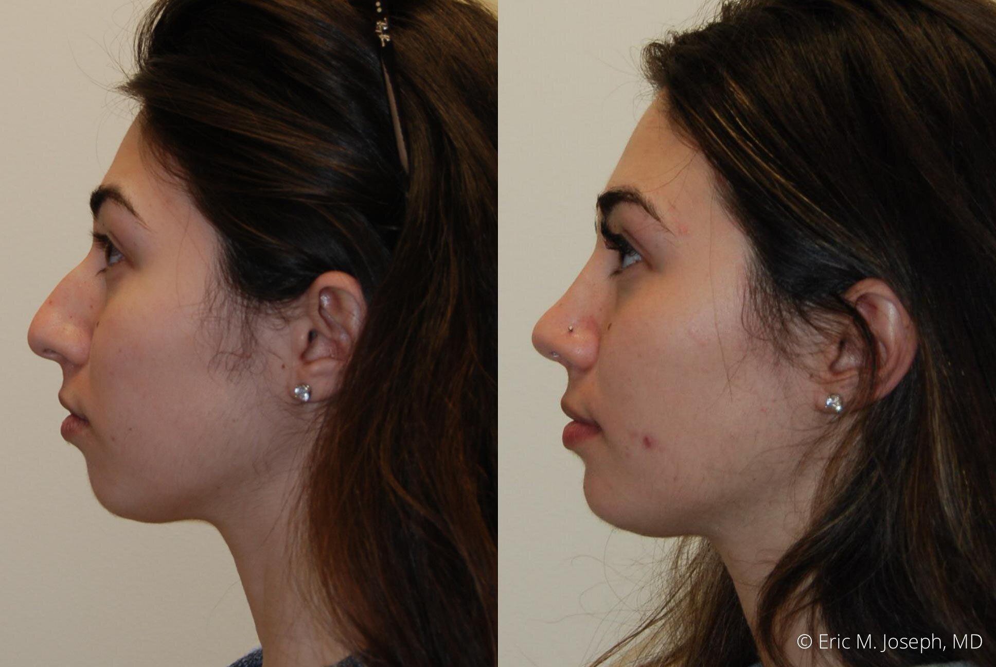 rhinoplasty-nj-expert-nyc-0381.jpg
