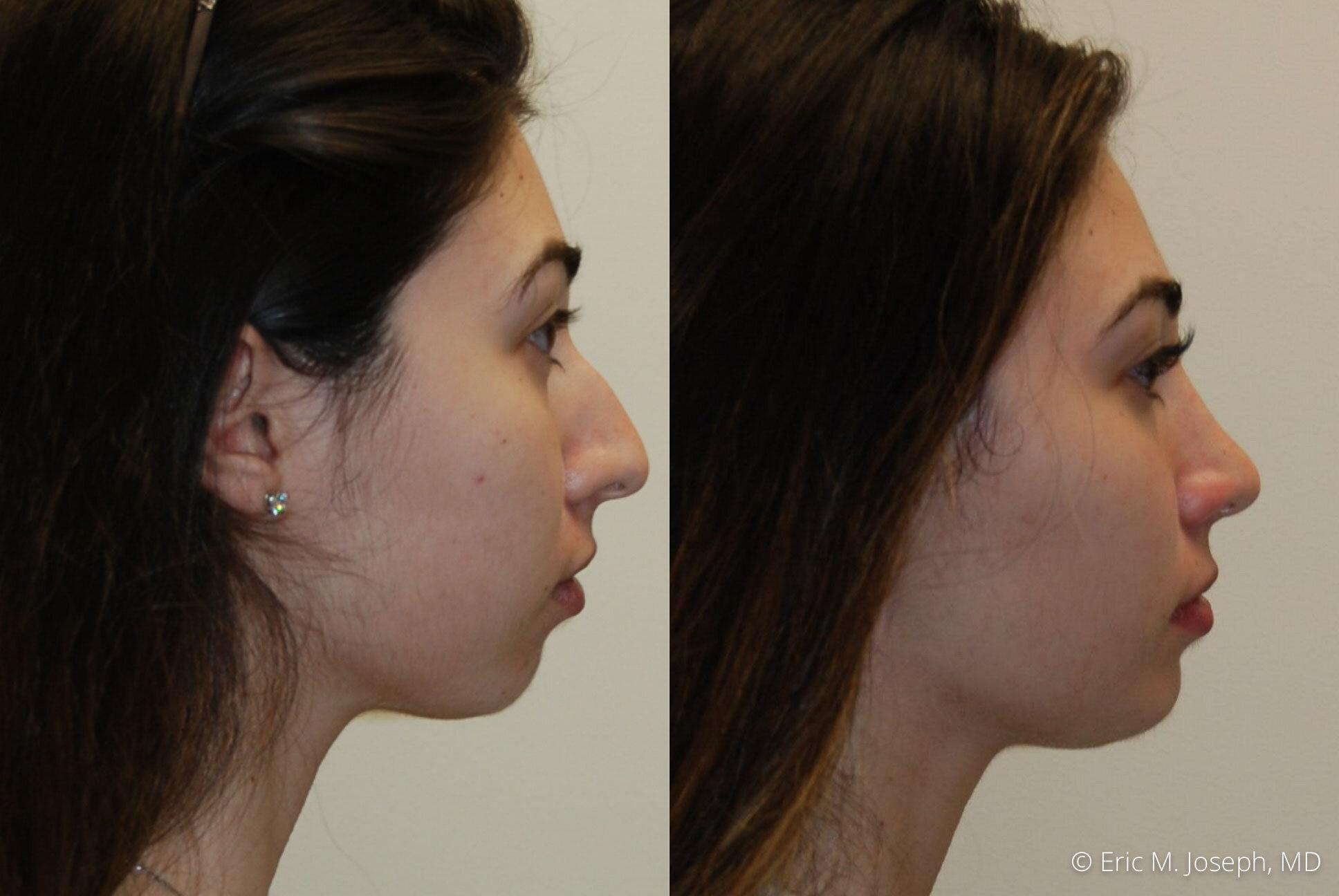 rhinoplasty-nj-expert-nyc-0382.jpg