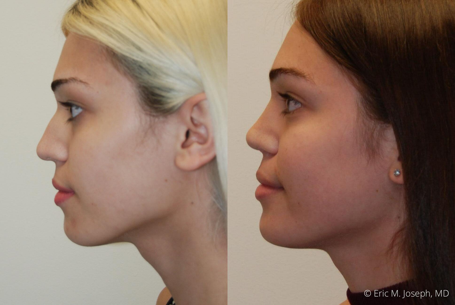 rhinoplasty-nj-expert-nyc-0386.jpg