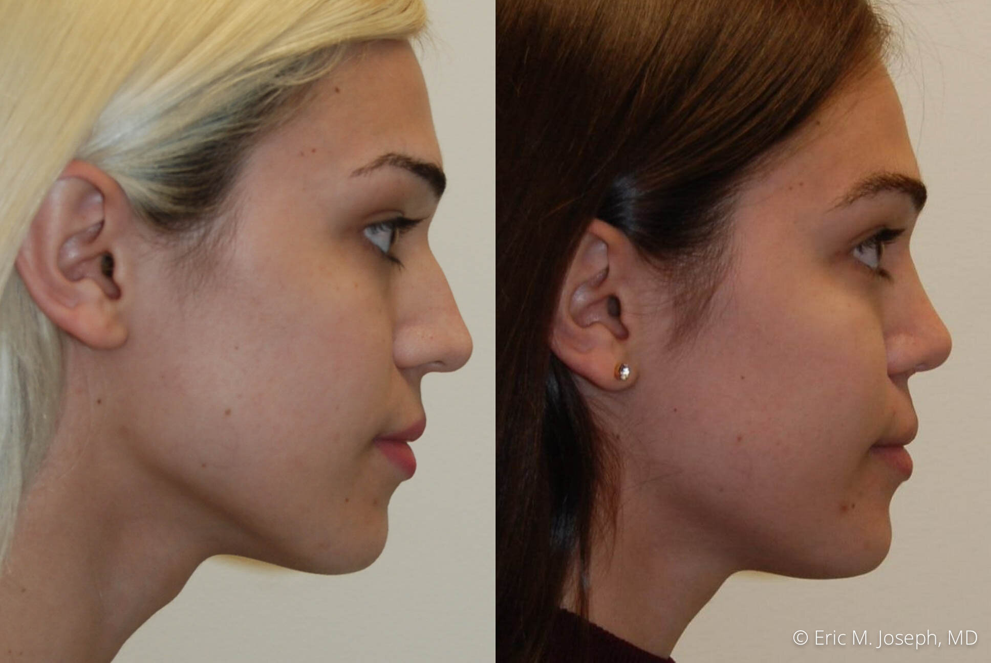 rhinoplasty-nj-expert-nyc-0387.jpg