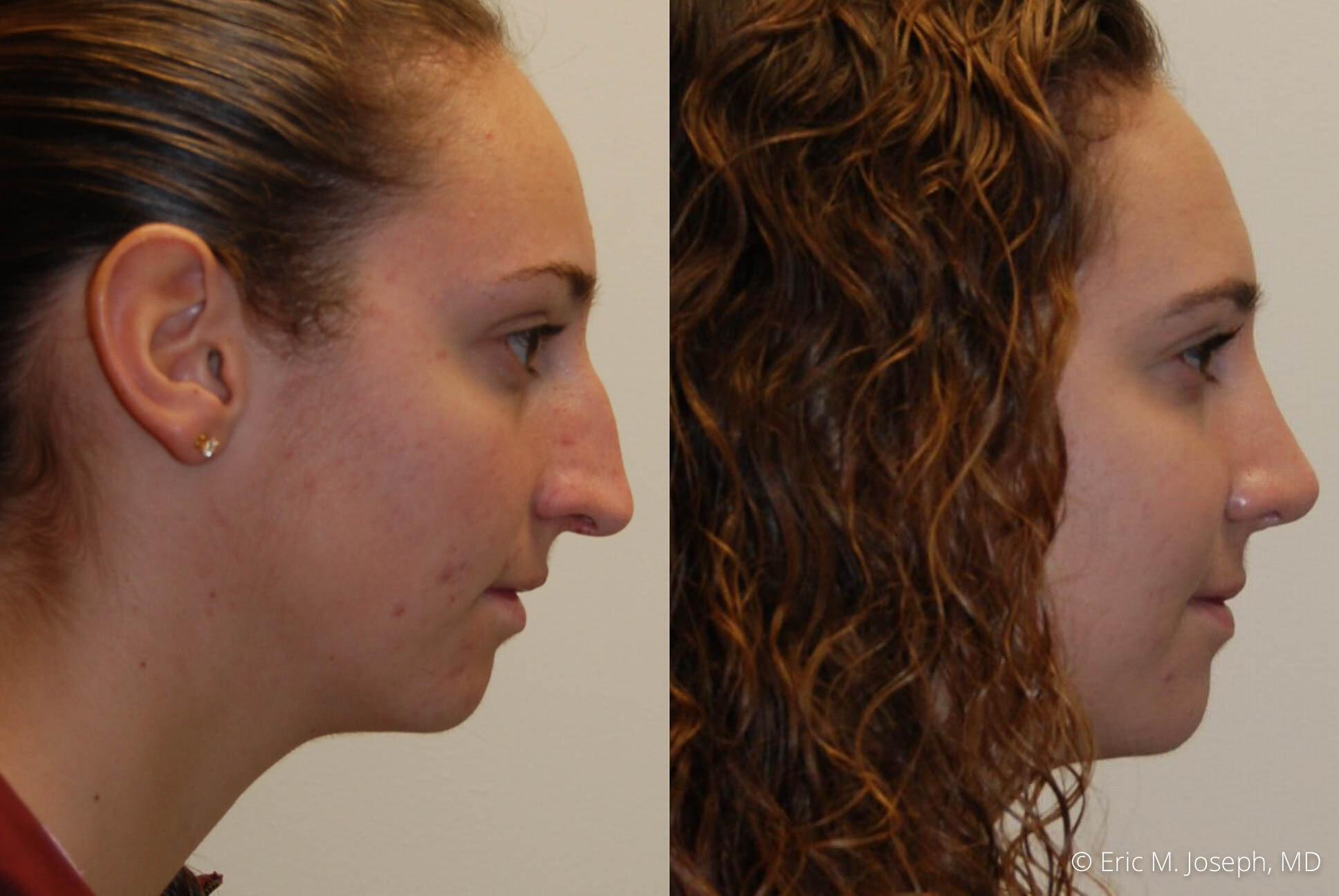 rhinoplasty-nj-expert-nyc-0393.jpg