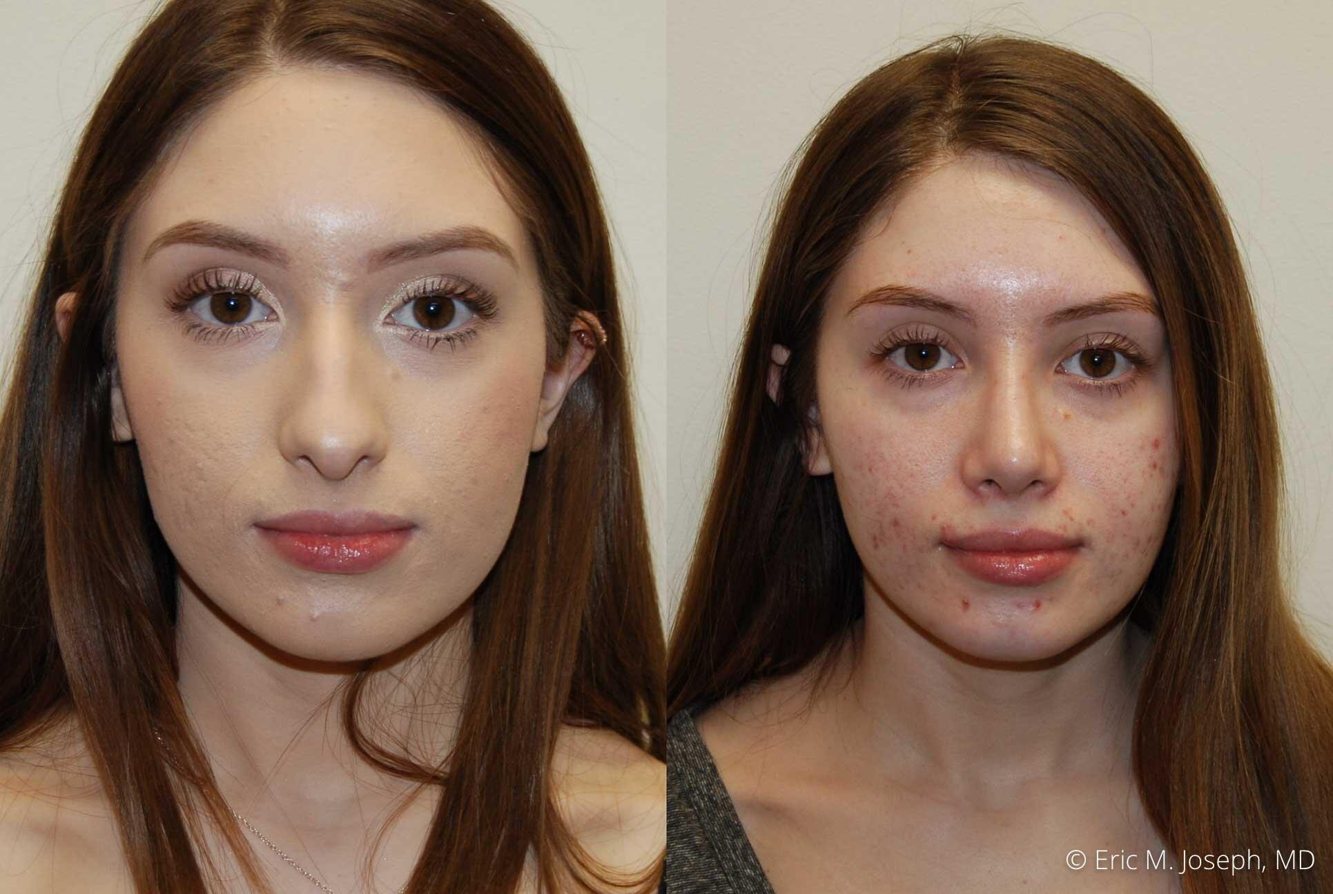 rhinoplasty-nose-job-nyc-nj-0470.jpg