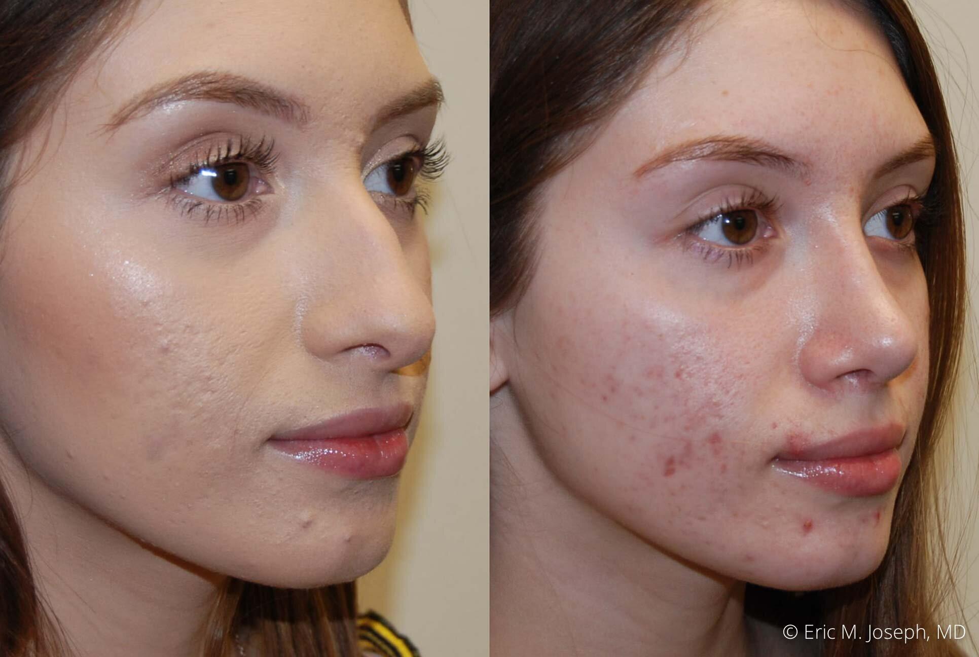 rhinoplasty-nose-job-nyc-nj-0471.jpg