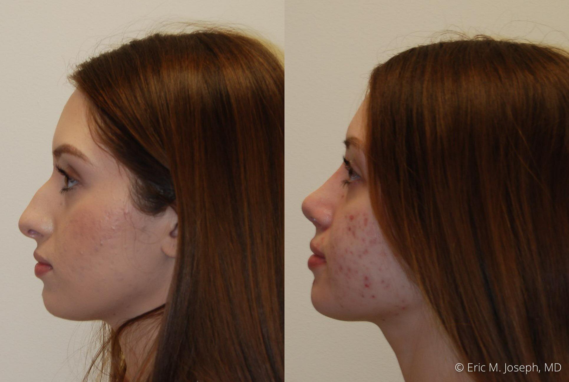 rhinoplasty-nose-job-nyc-nj-0473.jpg