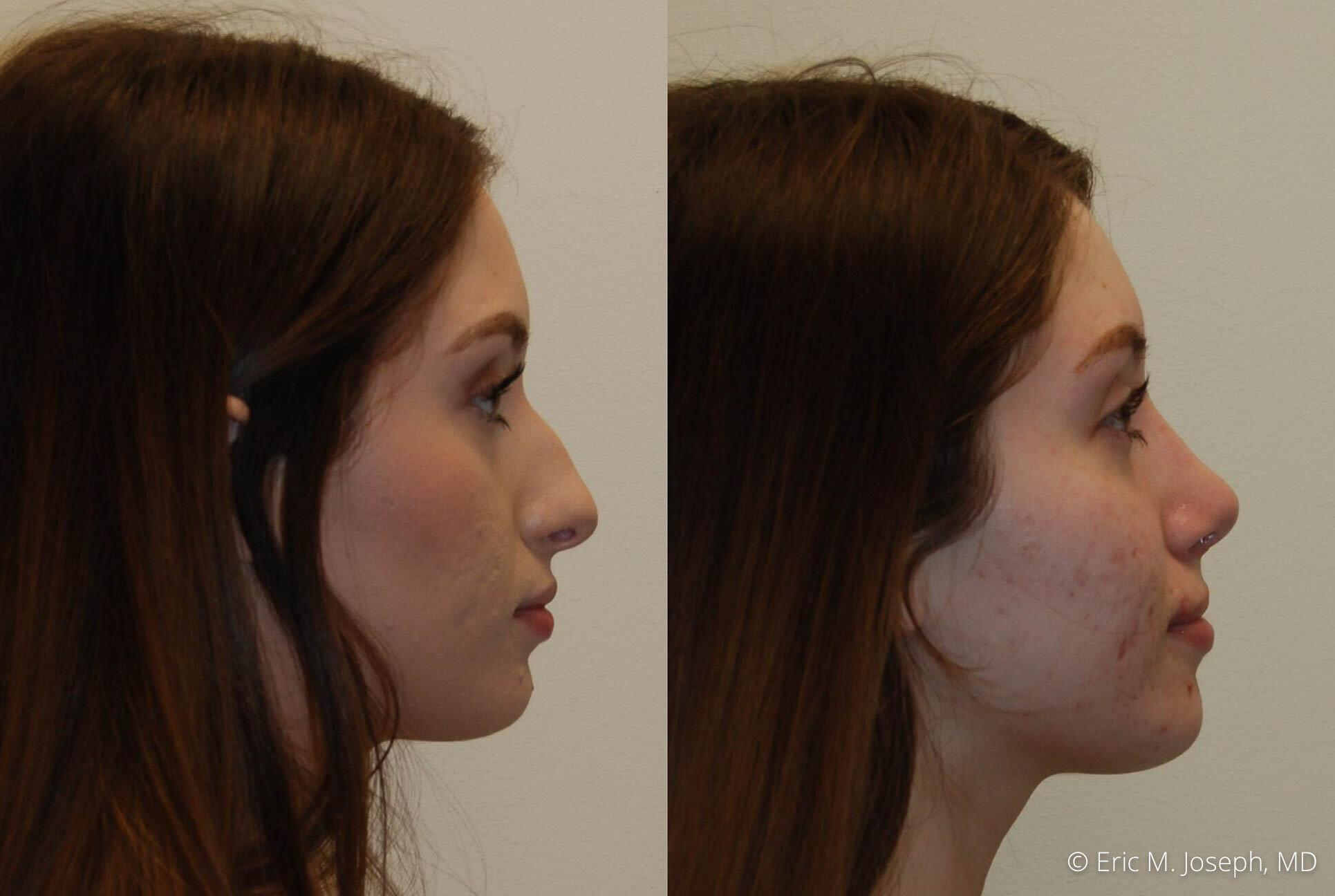 rhinoplasty-nose-job-nyc-nj-0474.jpg