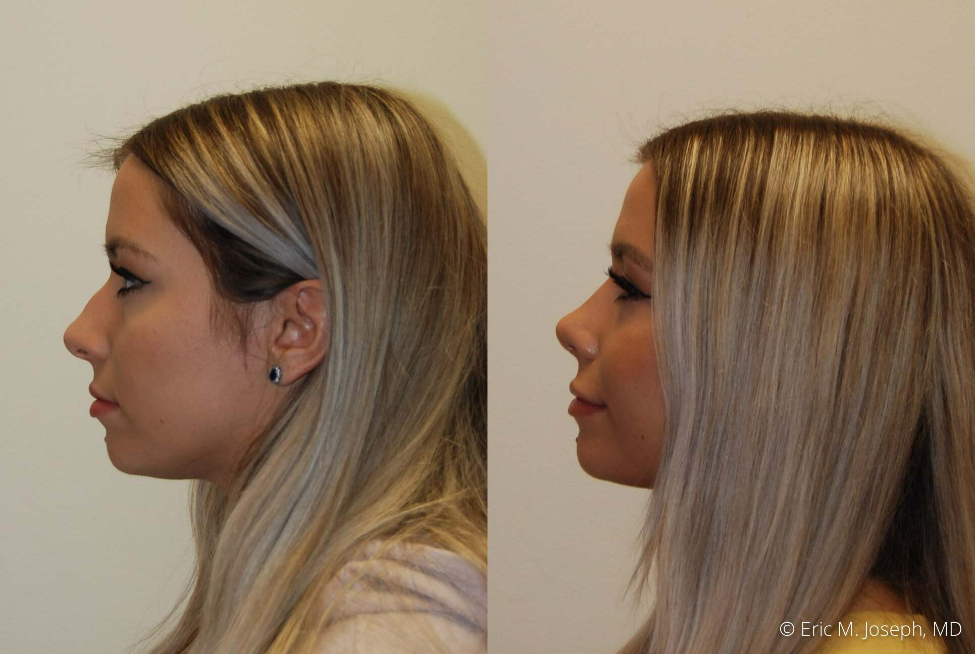 nose-job-rhinoplasty-nj-nyc-0467.jpg