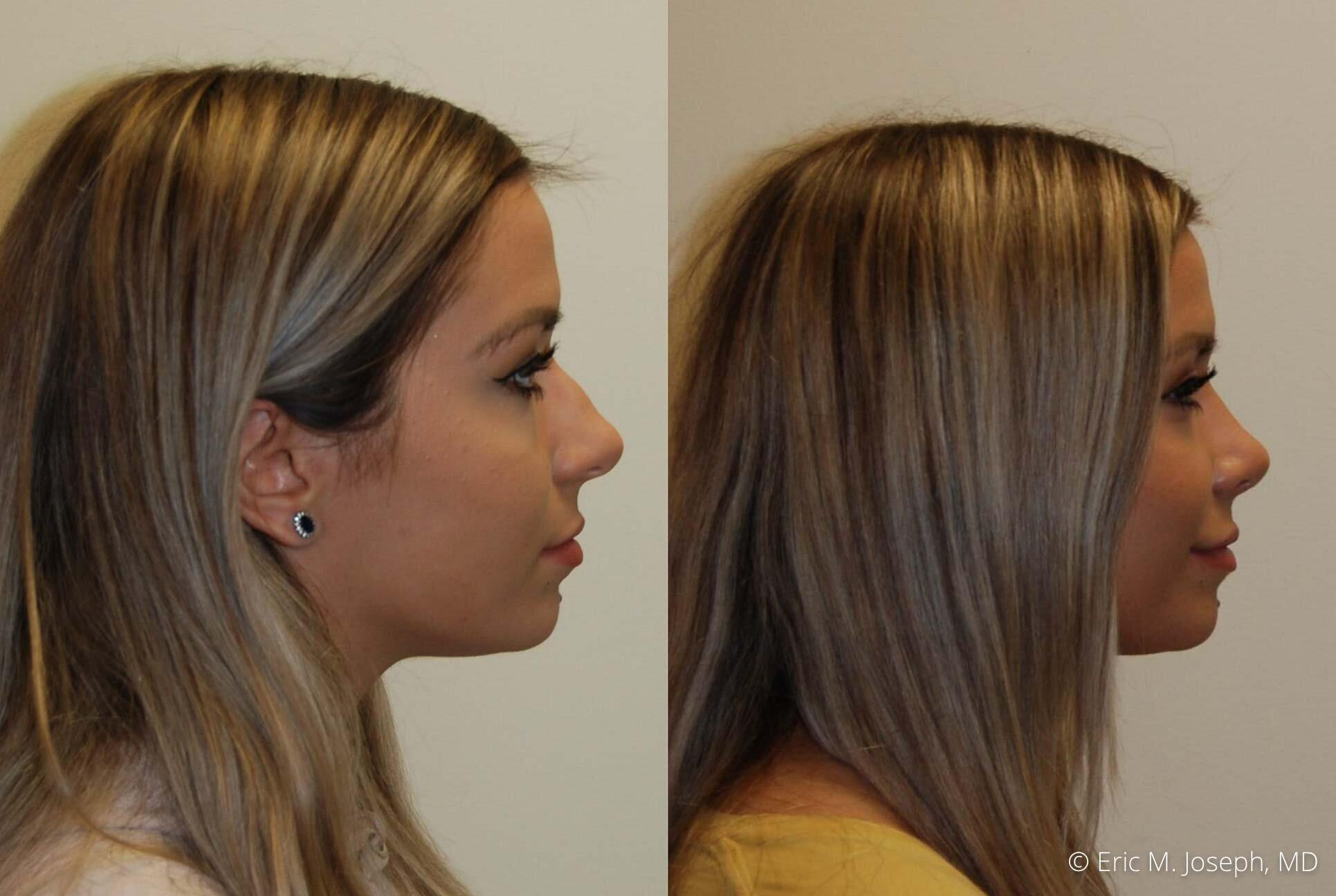 nose-job-rhinoplasty-nj-nyc-0468.jpg