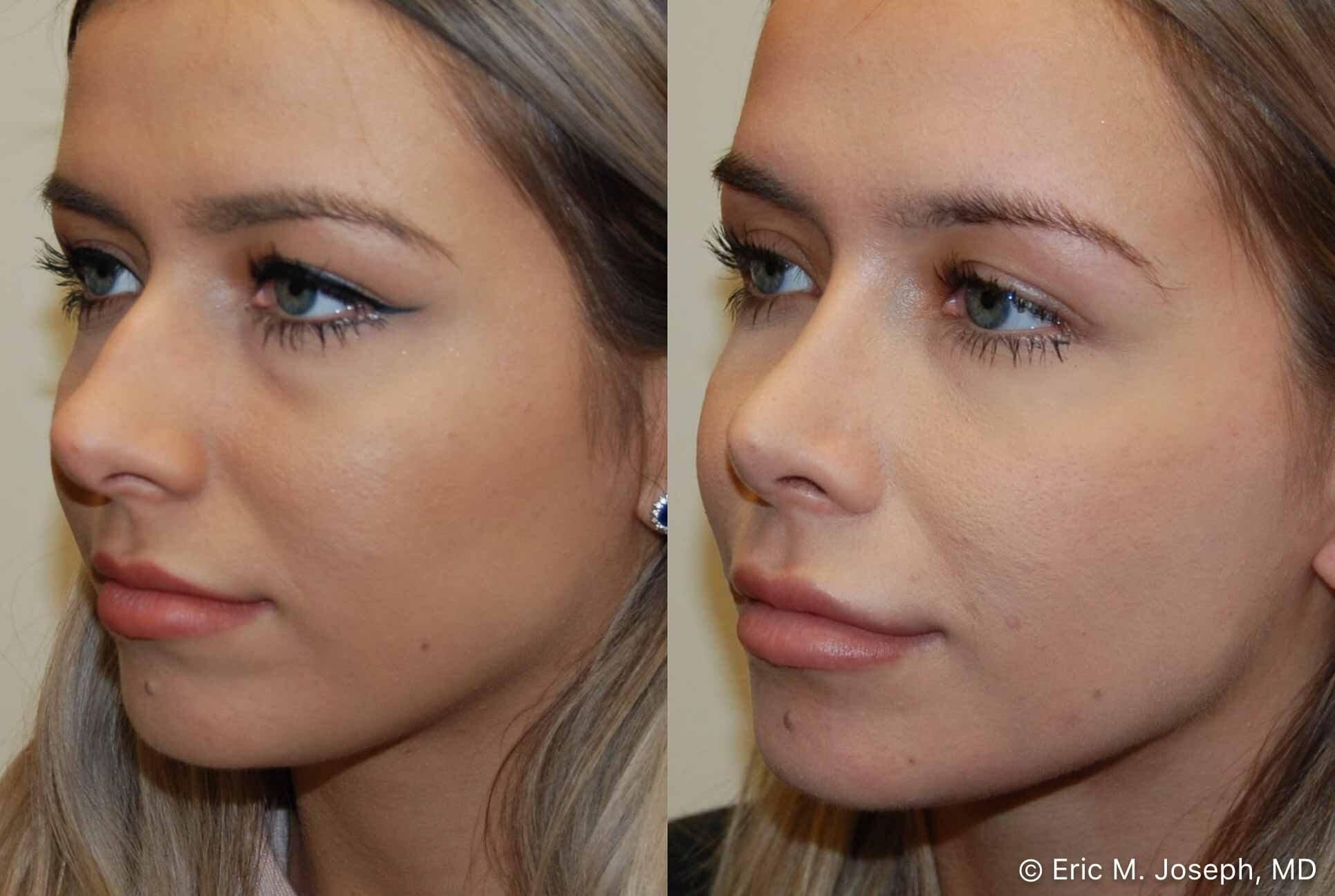 rhinoplasty-nj-nose-job-nyc-0561.jpg