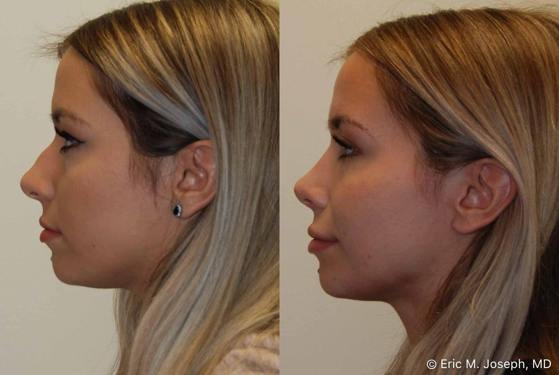 rhinoplasty-nj-nose-job-nyc-0562.jpg
