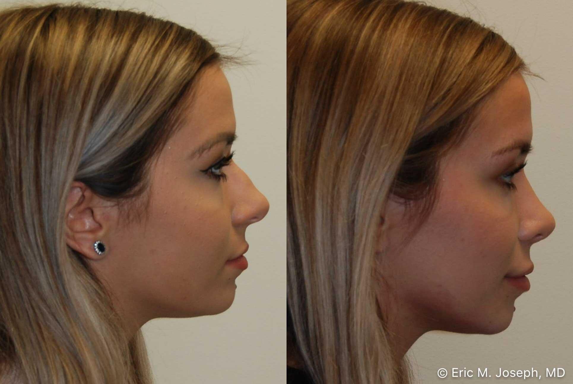rhinoplasty-nj-nose-job-nyc-0563.jpg