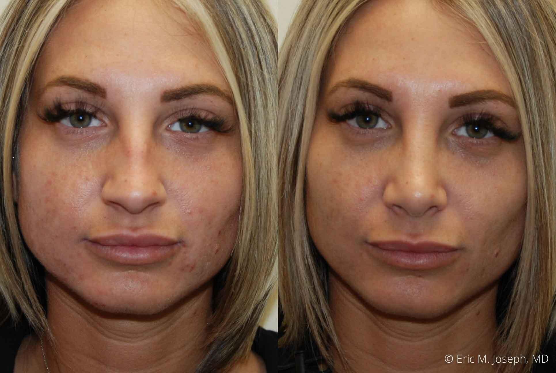 rhinoplasty-nj-nose-job-0540.jpg