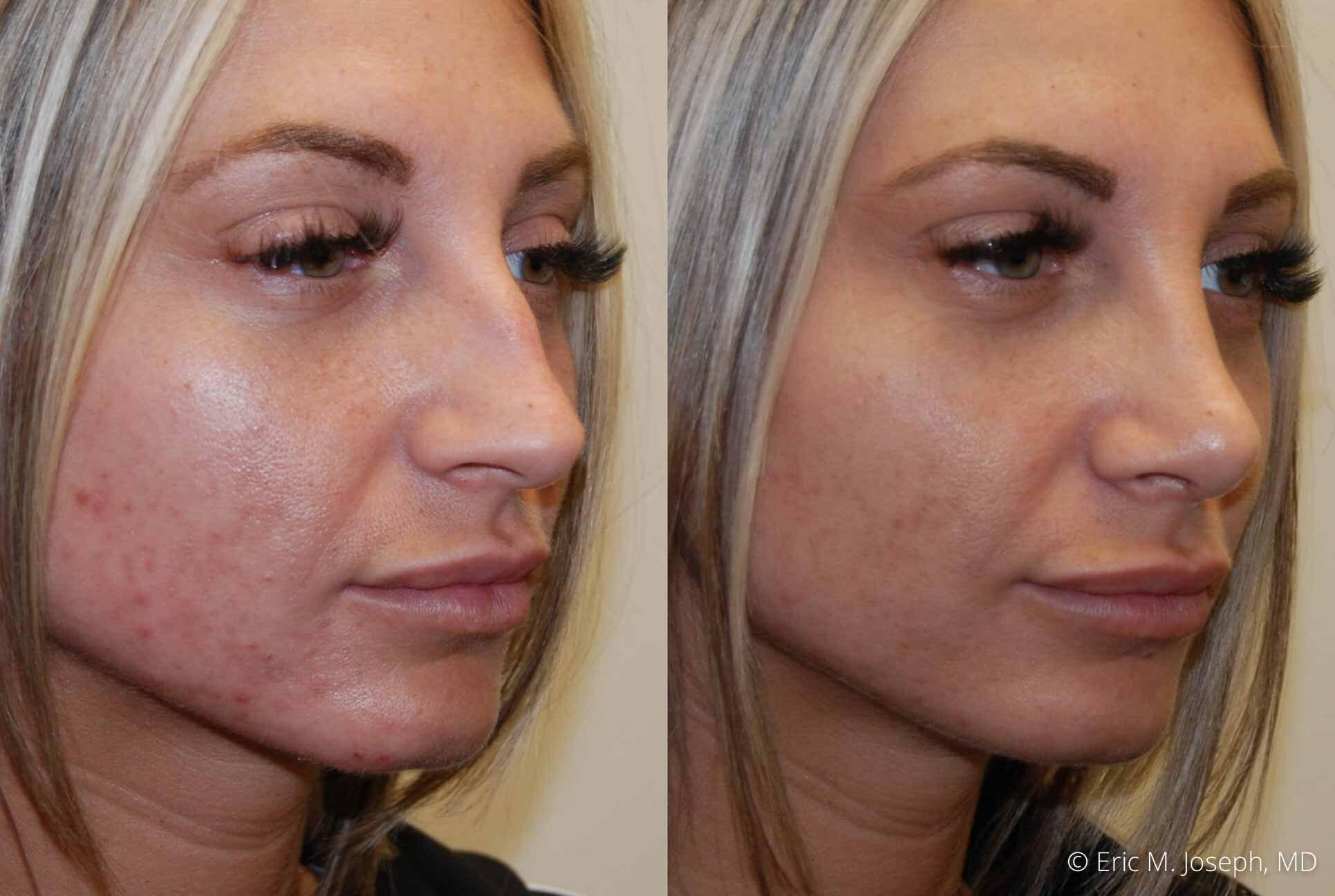 rhinoplasty-nj-nose-job-0541.jpg
