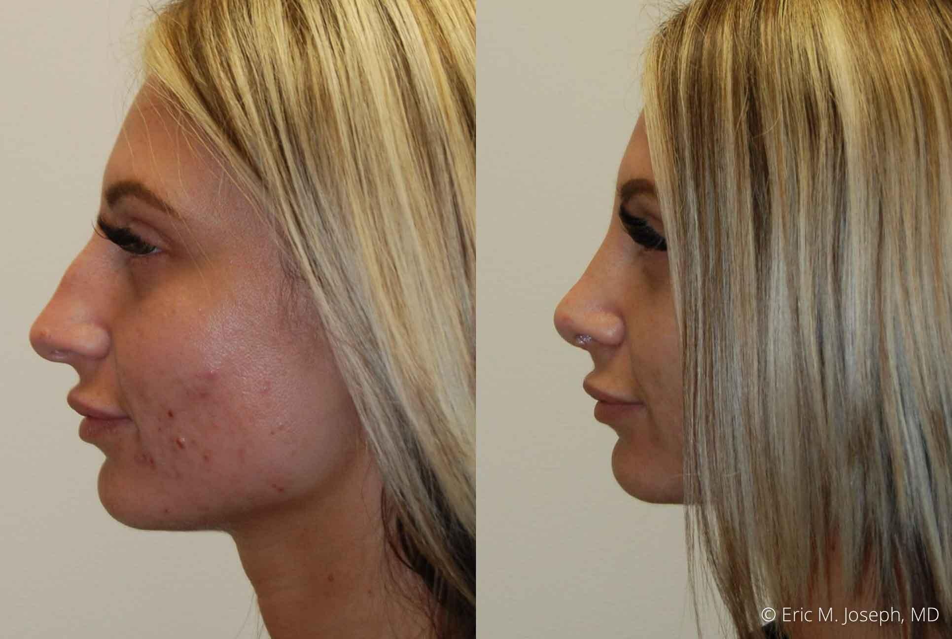 rhinoplasty-nj-nose-job-0543.jpg