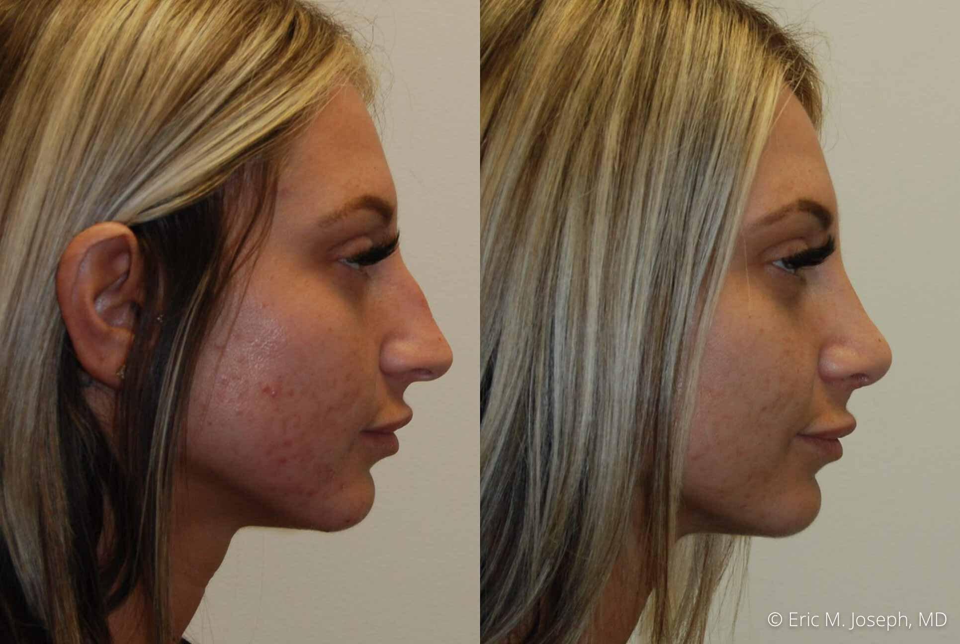 rhinoplasty-nj-nose-job-0544.jpg