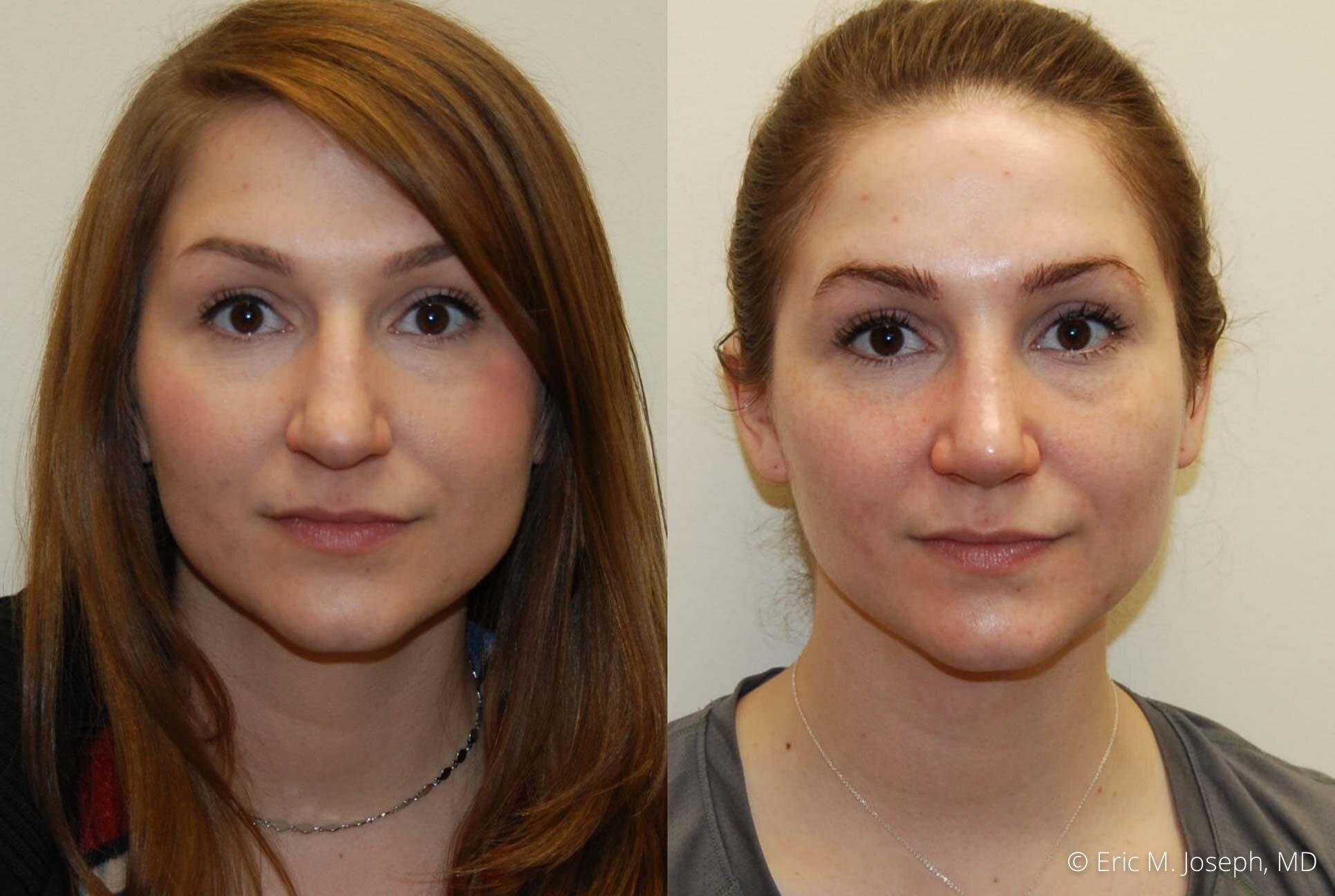 rhinoplasty-nj-nyc-natural-expert-0443.jpg