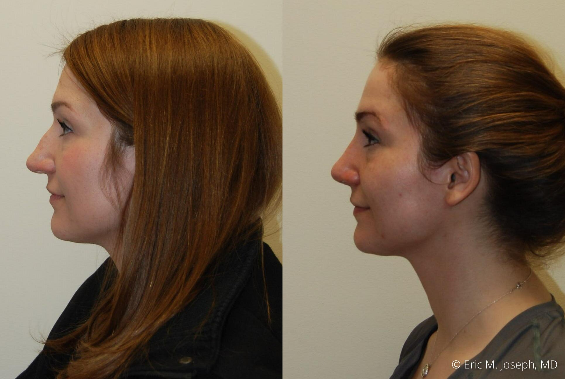 rhinoplasty-nj-nyc-natural-expert-0446.jpg