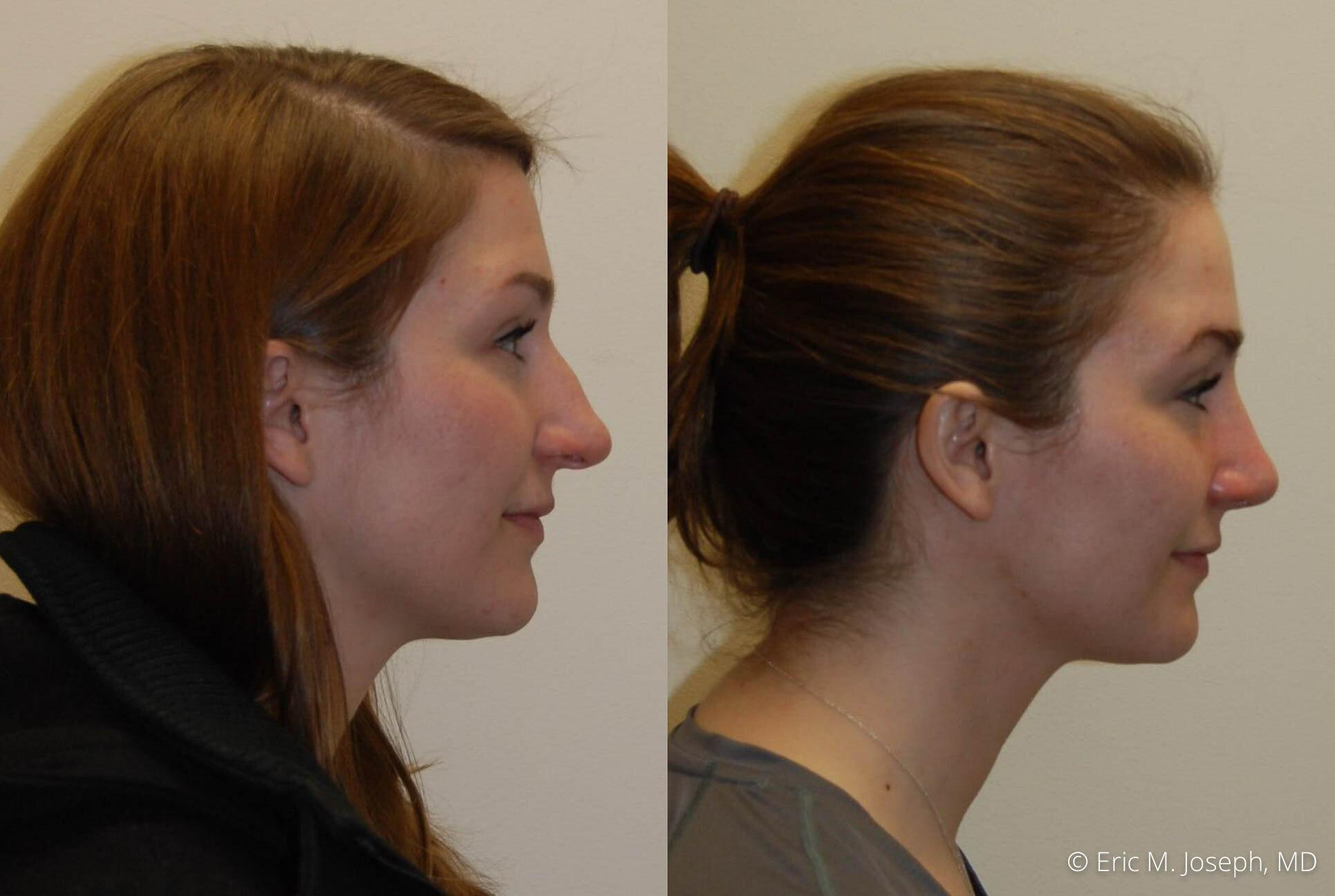 rhinoplasty-nj-nyc-natural-expert-0447.jpg