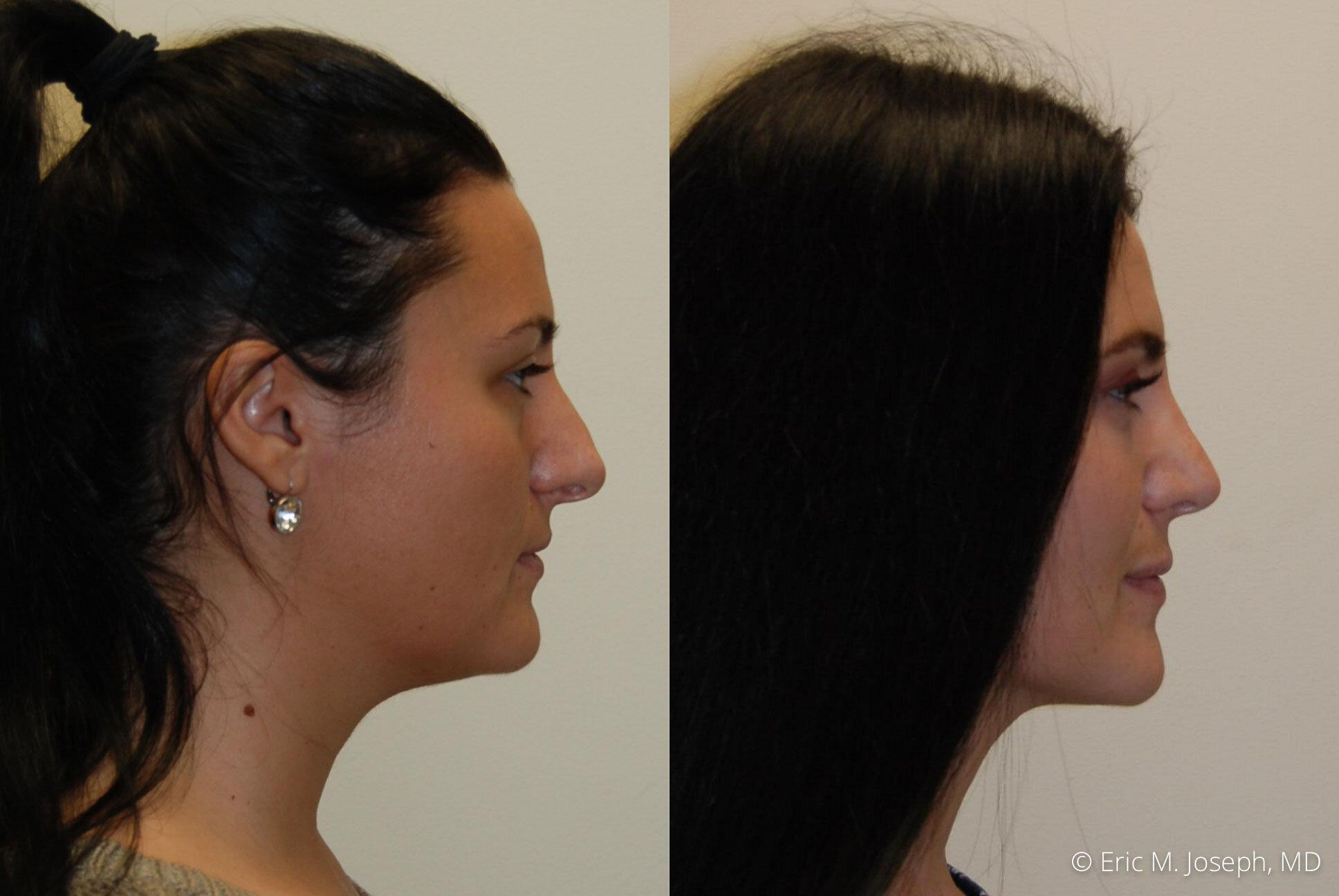 rhinoplasty-nj-nyc-natural-expert-0442.jpg