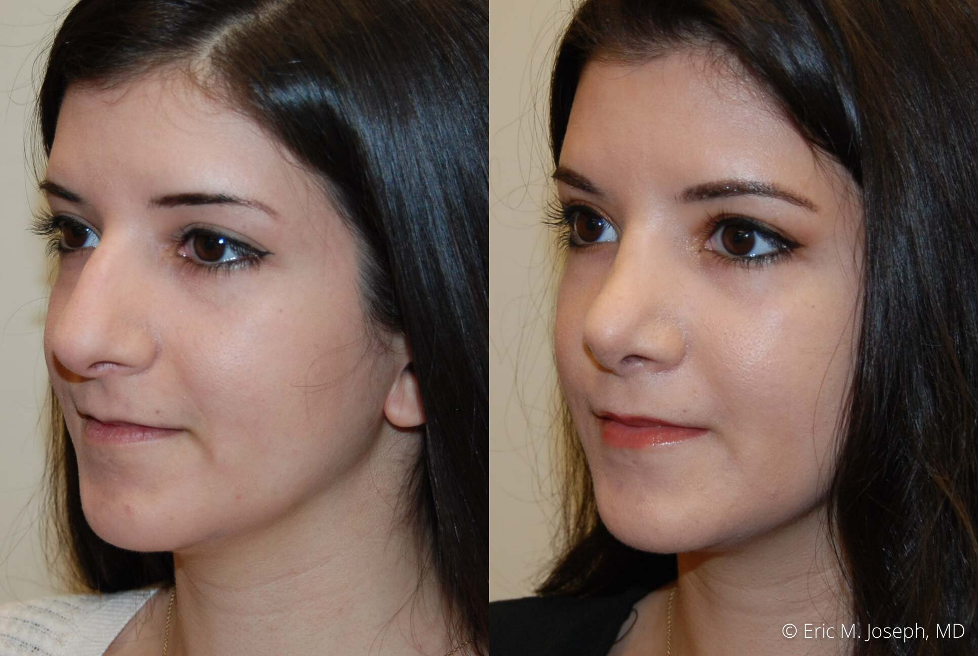 rhinoplasty-nose-job-nyc-nj-0481.jpg