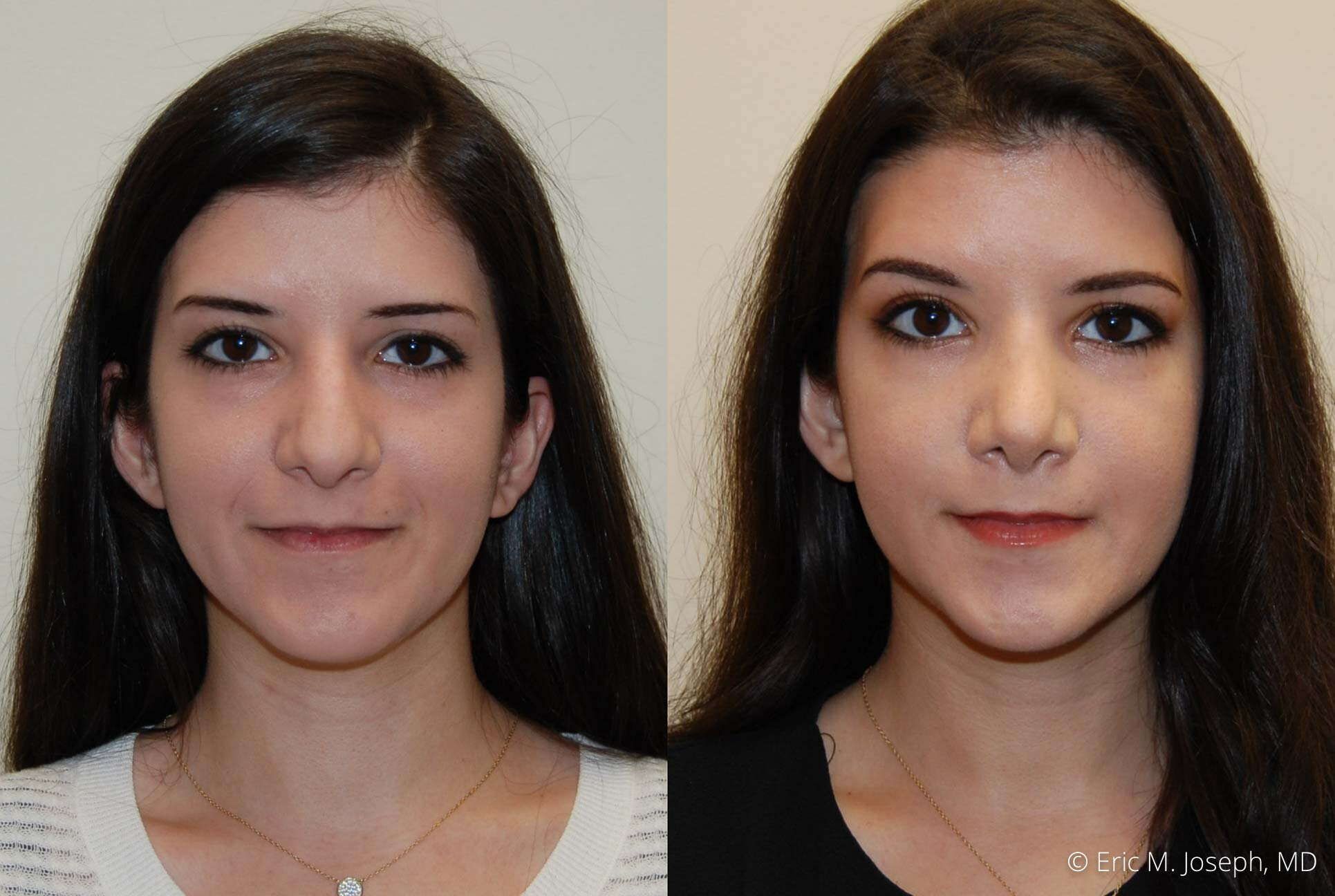 rhinoplasty-nose-job-nyc-nj-0480.jpg