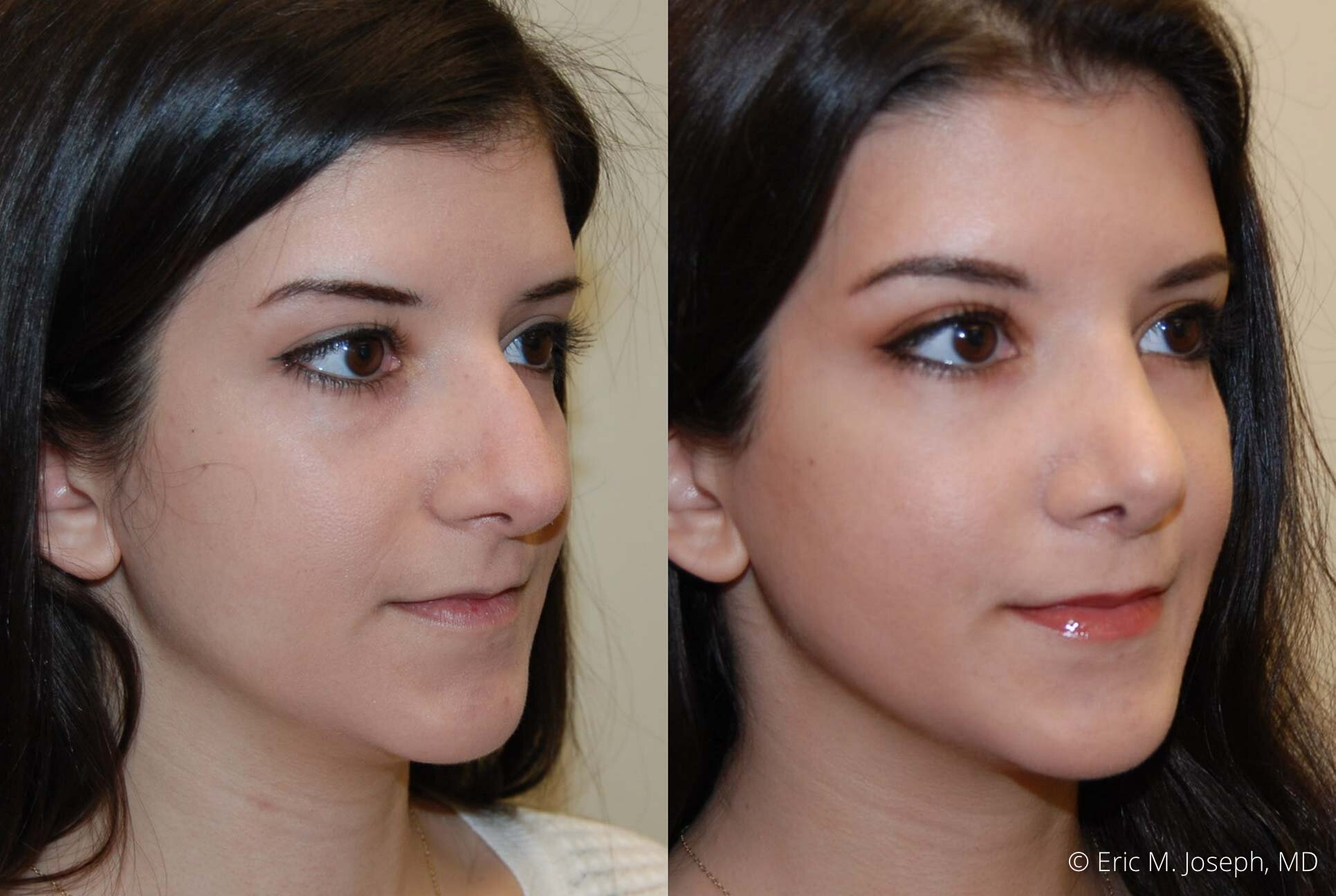 rhinoplasty-nose-job-nyc-nj-0482.jpg