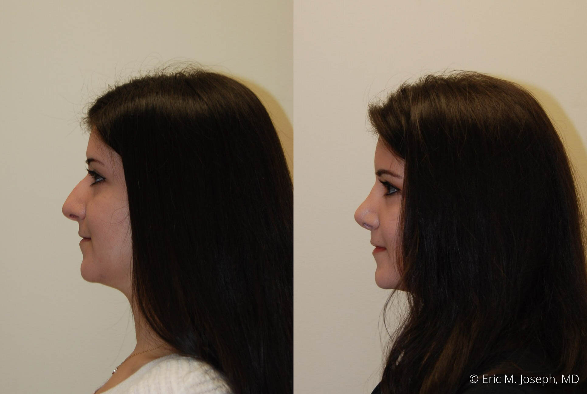 rhinoplasty-nose-job-nyc-nj-0483.jpg
