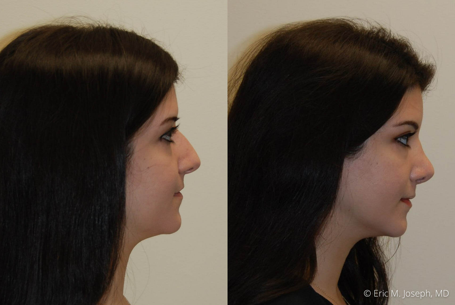 rhinoplasty-nose-job-nyc-nj-0484.jpg