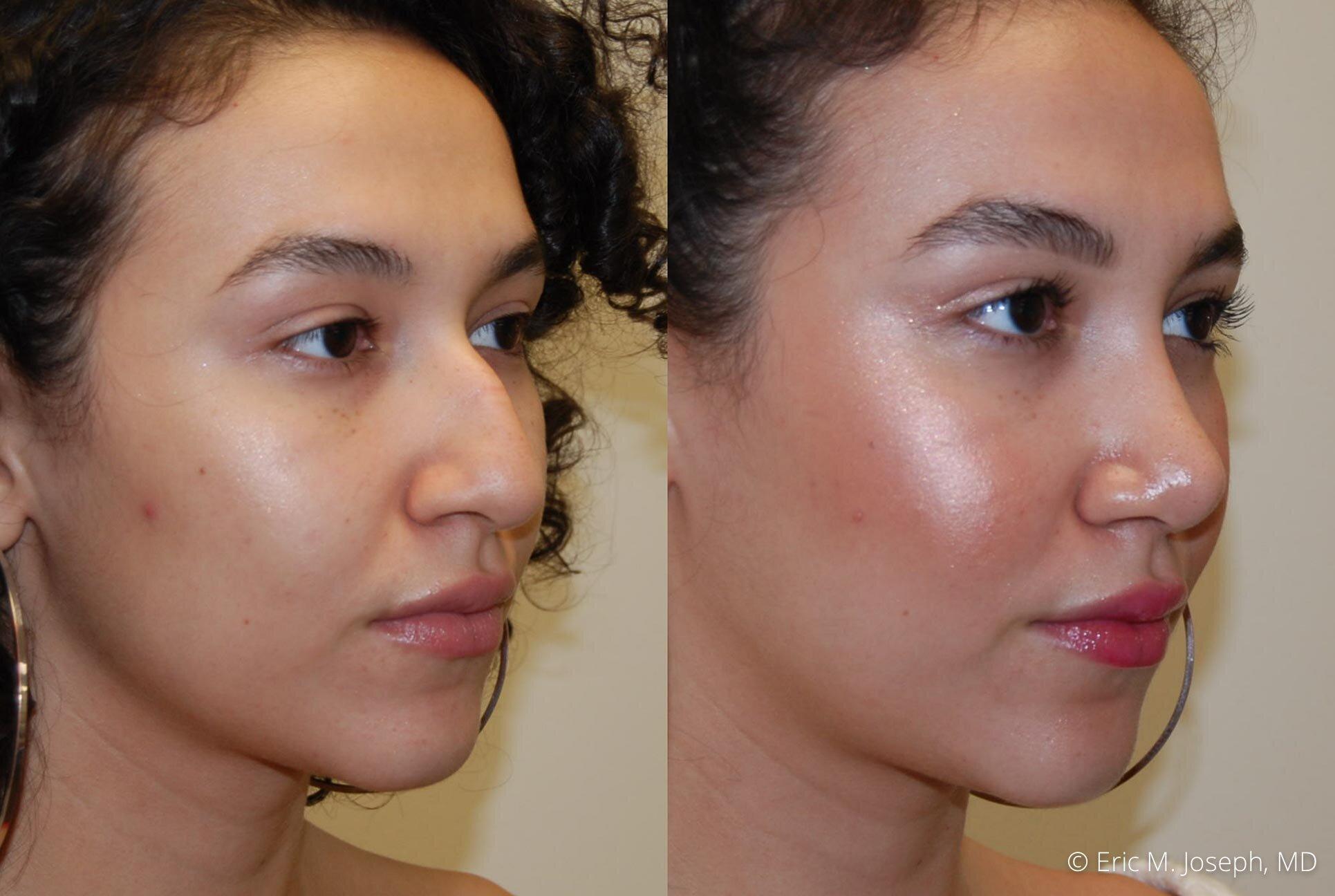 rhinoplasty-nose-job-nj-0491.jpg
