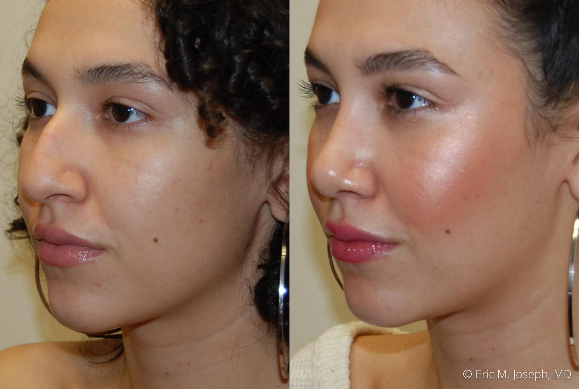 rhinoplasty-nose-job-nj-0492.jpg