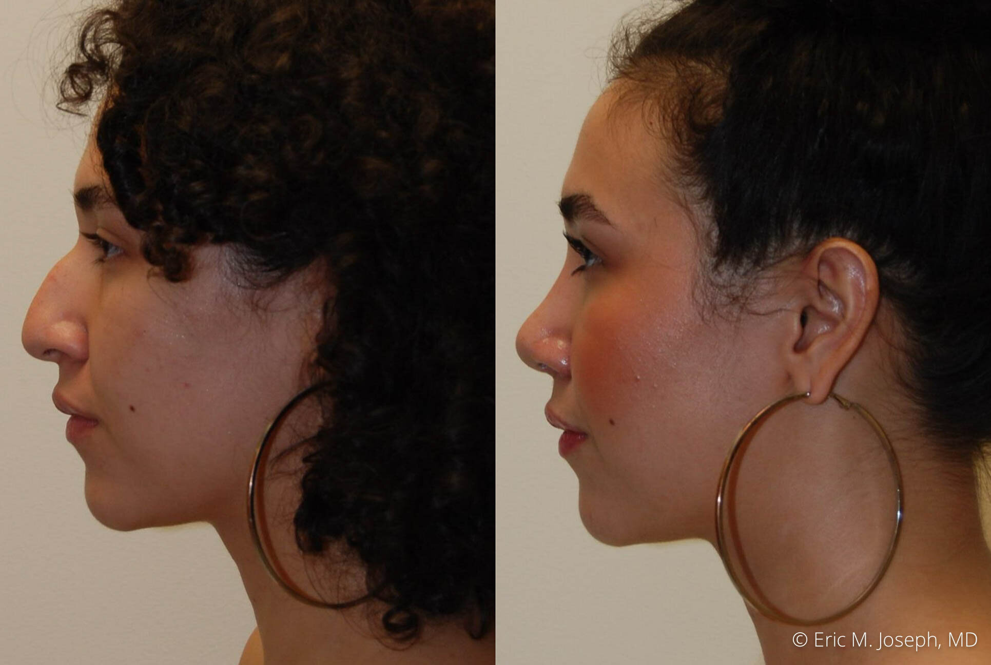 rhinoplasty-nose-job-nj-0493.jpg
